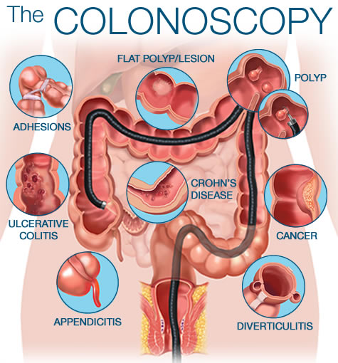 The_Colonoscopy